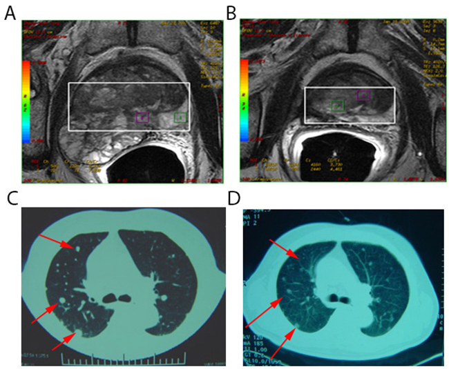 Spontaneous regression of lung metastases after cryoablation for metastatic prostate cancer.