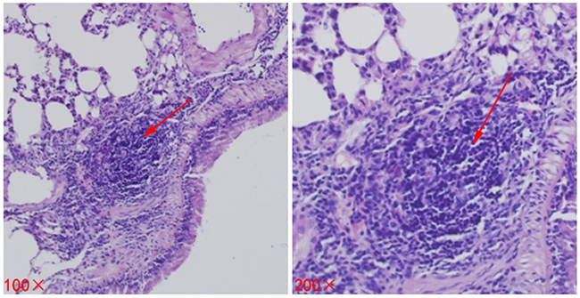 Metastases (lesions) in lung tissues of mice.