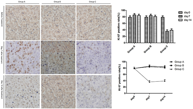 The expression of Ki67 in untreated tumors after treatment.