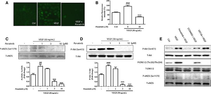 Effects of Ponatinib on VEGF-stimulated Akt/eNOS/NO pathway.