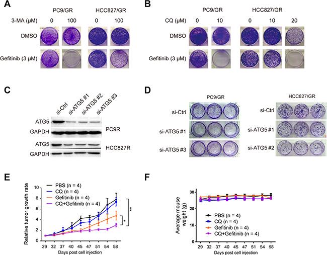 Inhibition of autophagy suppresses gefitinib resistance.