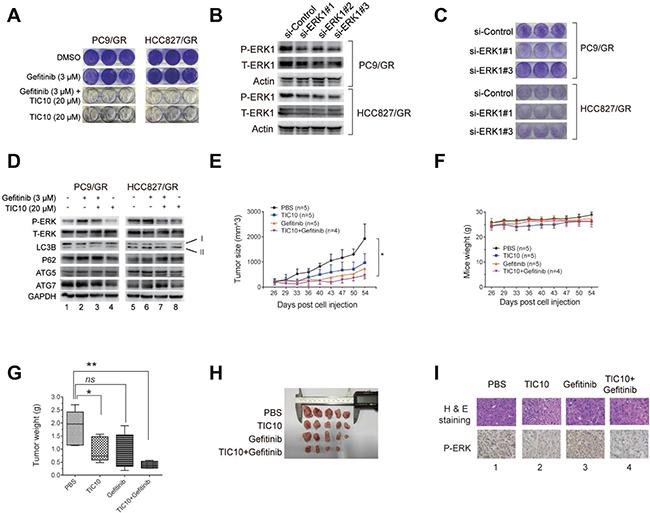 Inhibition of ERK phosphorylation reverses gefitinib resistance by suppressing autophagy.