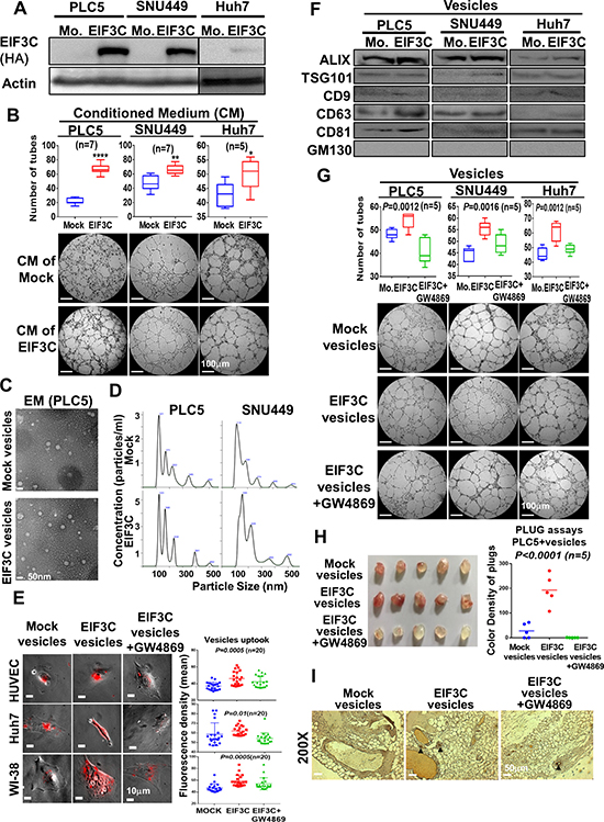 Overexpression of EIF3C in HCC cells increased secretion of exosomes to promote HCC angiogenesis in vitro and in vivo.