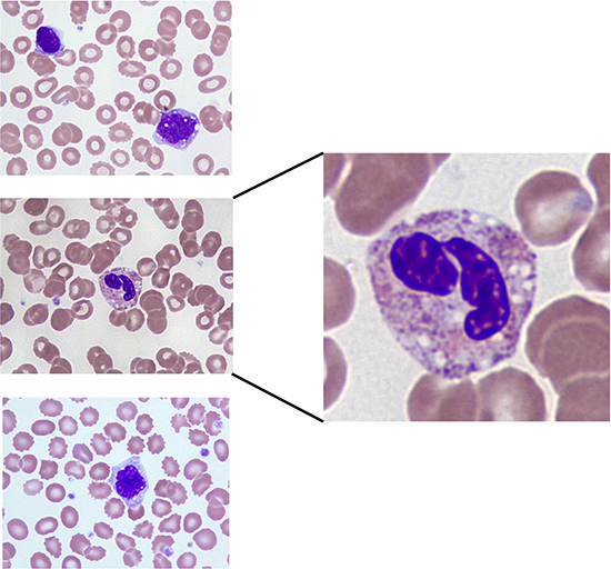 Blood smear showing vacuolated monocytes and neutrophil from a patient that experienced DLT on nelfinavir DL5.