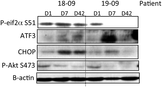 PI3K/AKT inhibition and ER stress pathway induction by nelfinavir in PBMCs of two cancer patients at the MTD.