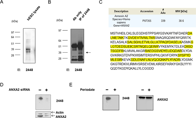 Identification of annexin A2 as the antigen target of 2448.