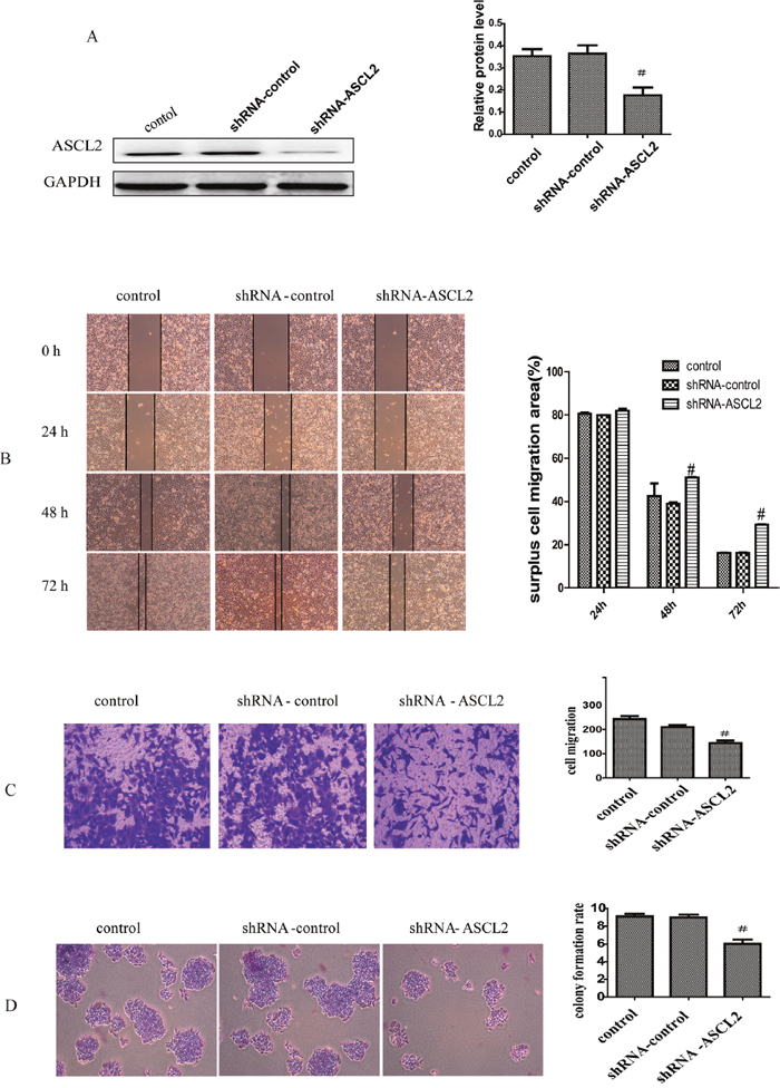 Oncotarget | Bufalin inhibits gastric cancer invasion and metastasis