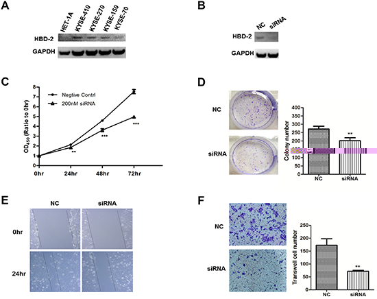 In-vitro functional study of HBD-2 in human esophageal SCC cells.