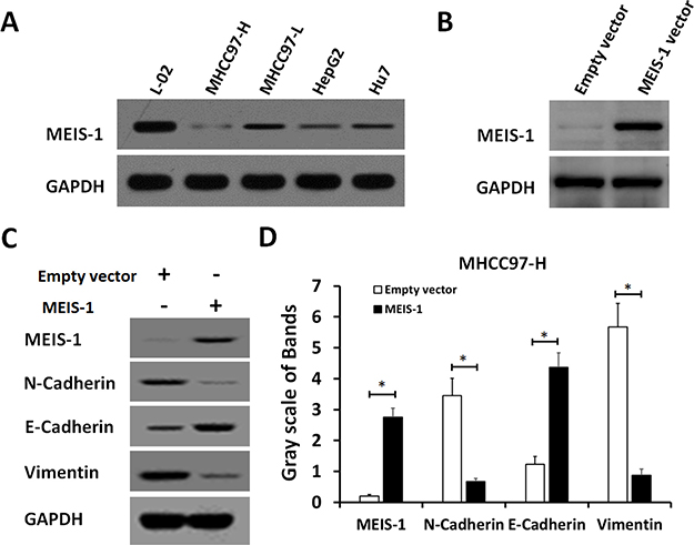 MEIS-1 inhibits the epithelial-mesenchymal transition (EMT) of MHCC97-H cells.