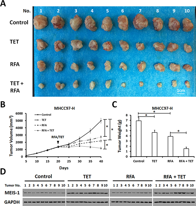 Impact of overexpression of MEIS-1 on subcutaneous growth of HCC cells in RFA-treated nude mice.