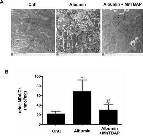 MnTBAP treatment ameliorated oxidative stress and mitochondrial abnormality induced by albumin overload in mice.