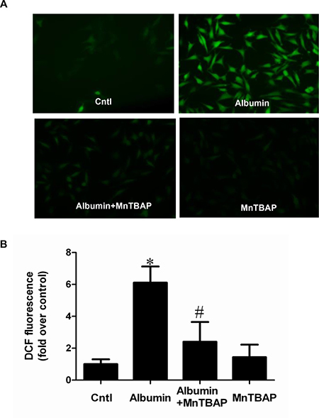 MnTBAP treatment suppressed albumin-induced ROS production in mPTCs.