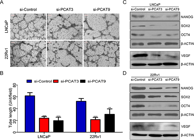 Loss of function of PCAT3 or PCAT9 in LNCaP and 22Rv1 cells reduced endothelial cell vasculature formation and suppresses stemness associated factors.