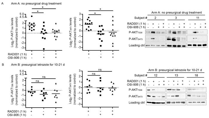 Presurgical estrogen deprivation in patients with ER+ breast cancer prevents RAD001-induced PI3K/AKT activation in tumors