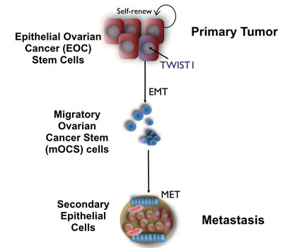 Role of TWIST1 on Epithelial Mesenchymal Transition of Epithelial Ovarian Cancer Stem cells.