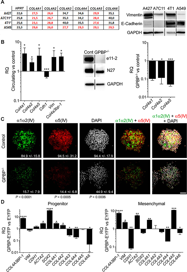 GPBP directs the formation of two independent mesh collagen IV networks in chemoresistant EMT cancer cell phenotypes.