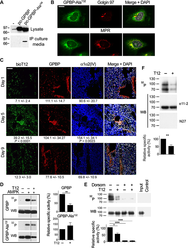 Epithelial cells clear tumor mesenchymal cGPBP levels and generate a previously unrecognized form of GPBP.