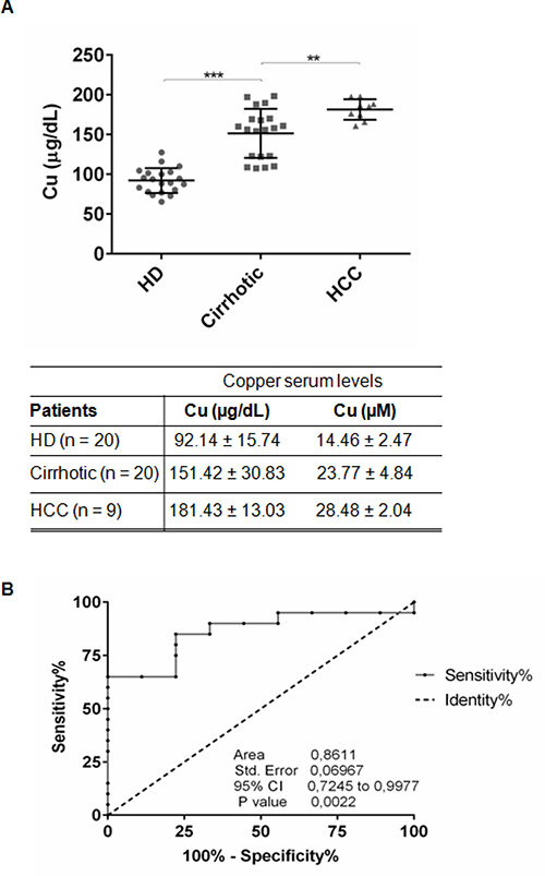 Serum copper level in cirrhotic and HCC patients.