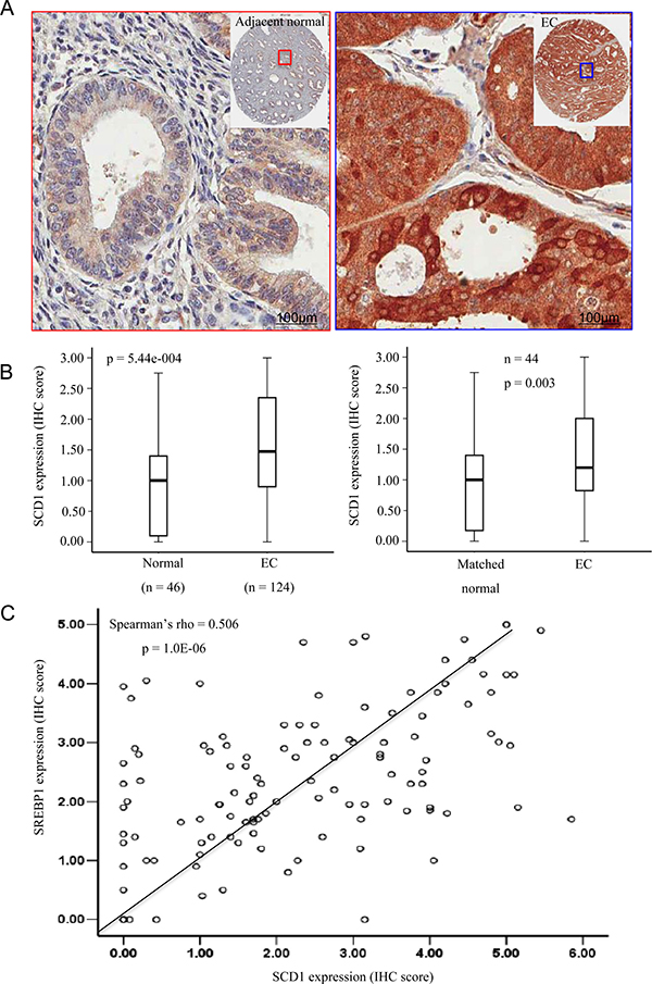 SCD1 is overexpressed in endometrial cancer (EC) determined by immunohistochemistry (IHC).