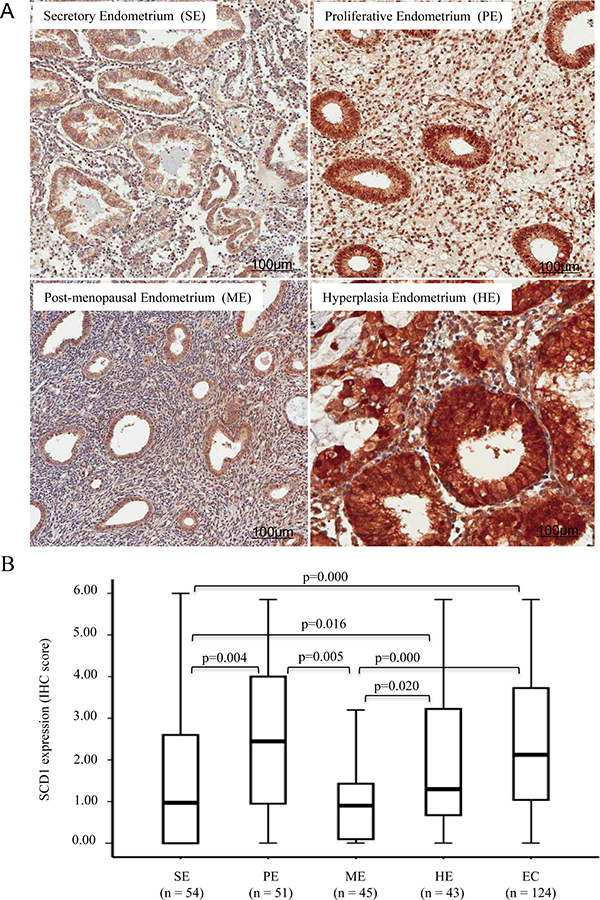 SCD1 expression is increased in proliferative and hyperplasia endometrium.