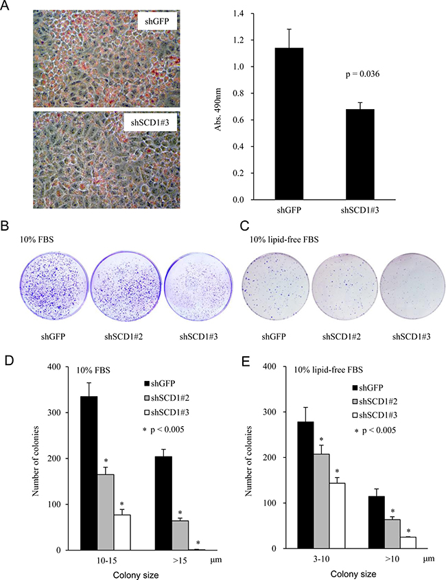 Knockdown of SCD1 expression represses lipid production and foci formation of endometrial cancer cells.