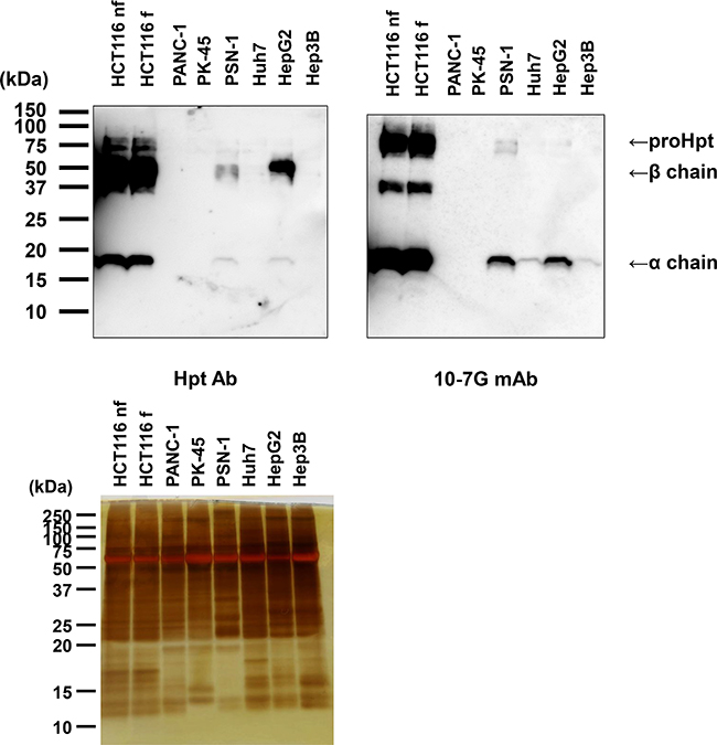 Western blot analysis of proHpt with the 10-7G mAb in conditioned media from human pancreatic cancer and hepatocellular carcinoma cell lines.