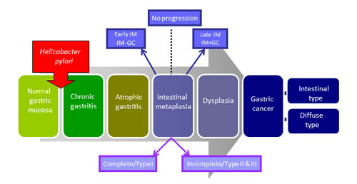 Progressive pathway to Gastric Cancer.