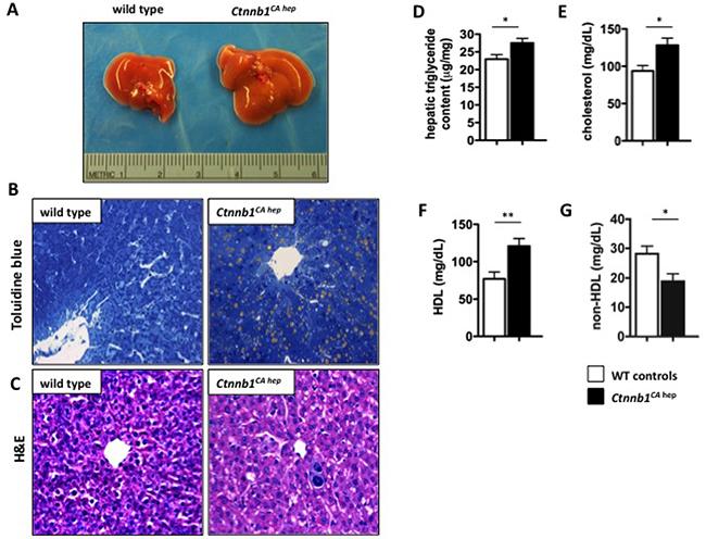 Ctnnb1CA hep mice display hepatic steatosis.
