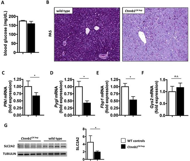 Ctnnb1CA hep mice display severe disturbances in carbohydrate metabolism.