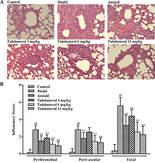 Effects of tulobuterol patch on the inflammatory cells infiltration in allergic mice.