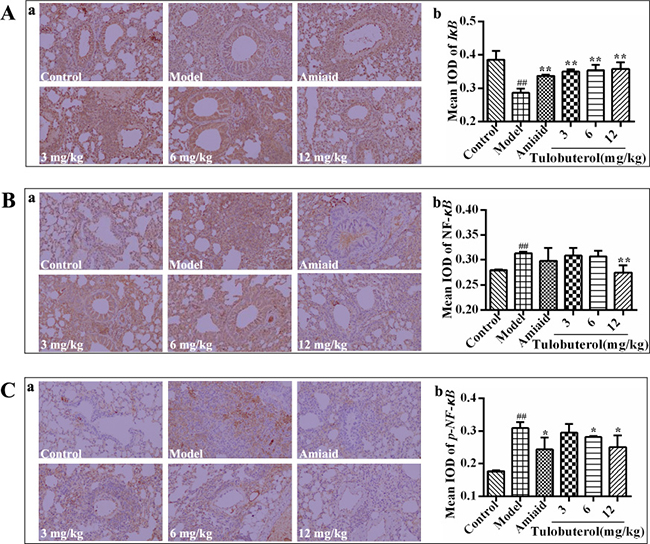 Effects of tulobuterol path on the expressions of IκB, NF-κB, and p-NF-κB detected by immunohistochemistry staining (×200).