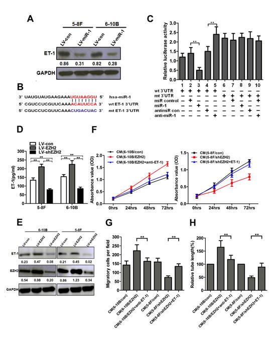 EZH2 promoted NPC angiogenesis through miR-1-mediated targeting of ET-1.