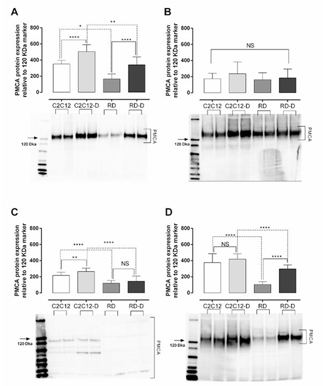 Plasma membrane calcium ATPase (PMCA) protein expression in normal muscle (C2C12) and malignant rhabdomyosarcoma (RD) cells.