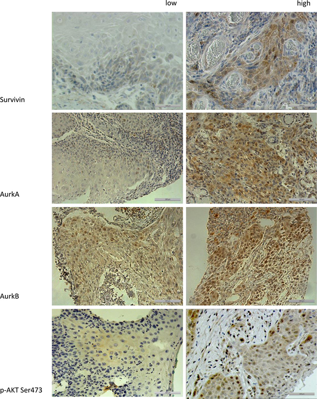 The figure shows the different expression levels (low vs. high) of the proteins Survivin, AurkA, AurkB, and p-Akt Ser 473 in immunohistochemical staining (200× magnification).