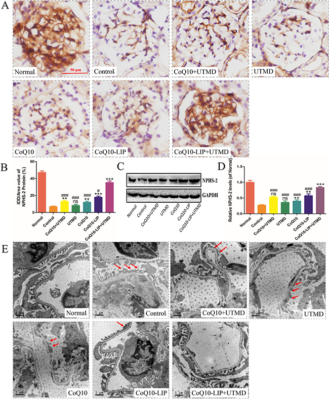 Protecting renal podocyte from injury in DN rats after various treatments.