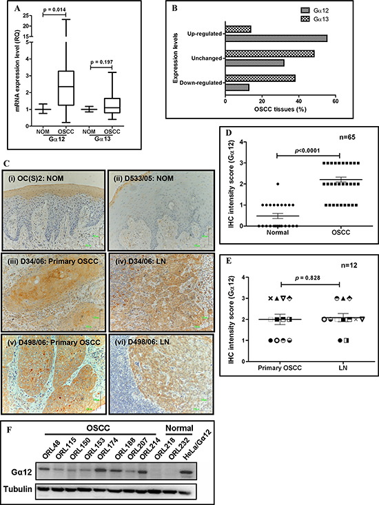 Overexpression of Gα12 in oral squamous cell carcinoma (OSCC) tissues and cell lines.