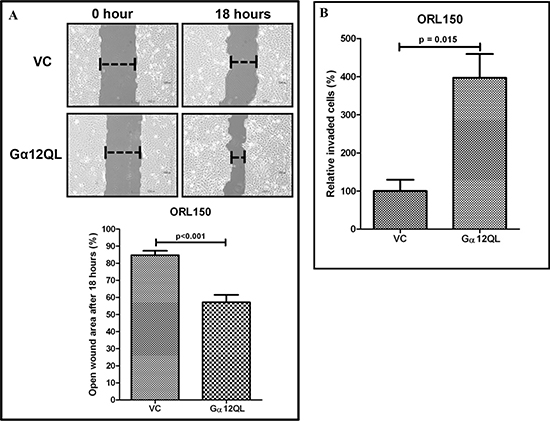 Activation of Gα12 promotes OSCC cell migration and invasion.