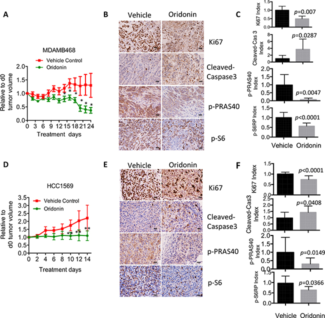 Oridonin impairs in vivo cell growth in breast cancer with hyperactivation of AKT signaling.