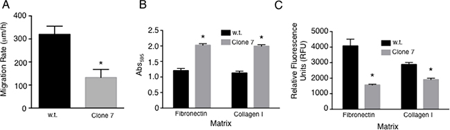 SELENOK deficiency alters adhesion and migration of melanoma cells.