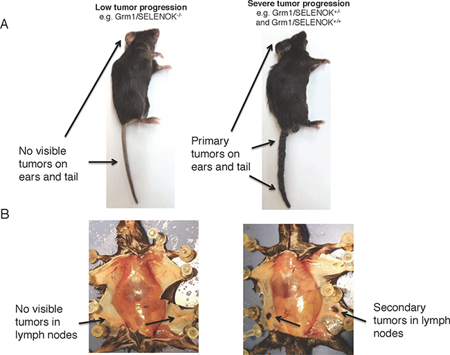 Deletion of SELENOK in vivo leads to reduced primary and secondary tumors in Grm1-Tg mice as analyzed by gross anatomy.