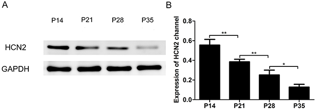 Expression of the HCN2 channel in the cortex of P14, P21, P28 and P35 mice decreased with the development of mice.