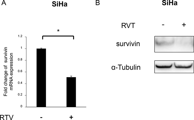 Effects of resveratrol (RVT) on survivin expression in SiHa cells.