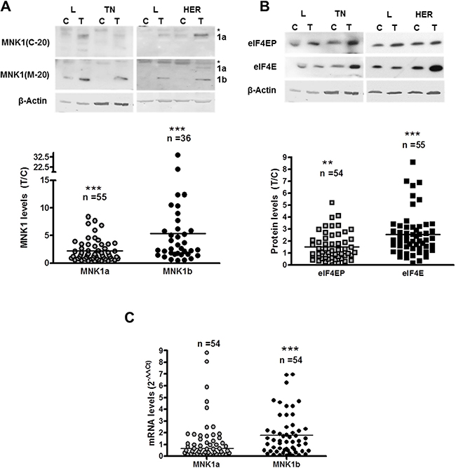 MNK1 isoforms, total and phosphorylated eIF4E levels in breast cancer samples.