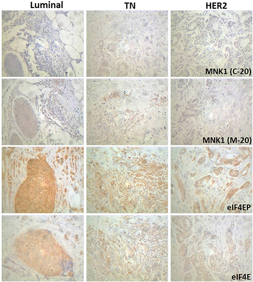 Immunohistochemical staining of MNK1 isoforms, total and phosphorylated eIF4E levels in breast cancer samples.