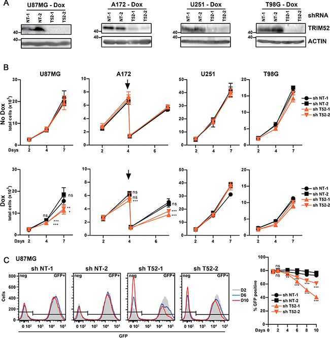 TRIM52 ablation reduces cellular fitness in a subset of glioblastoma cell lines.