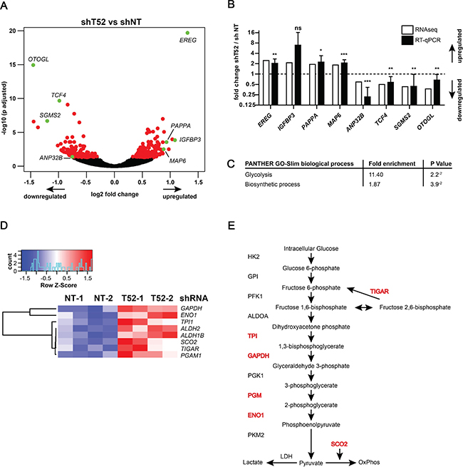 TRIM52 knockdown cells have a glucose metabolism-related gene signature.