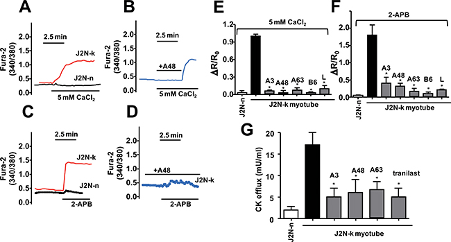 Effect of inhibitor compounds on the Ca2+ response in myocytes from hamster skeletal muscles.