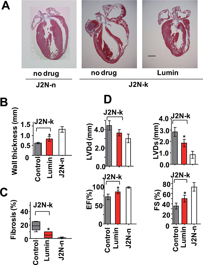 Protective effect of lumin against cardiomyopathy.