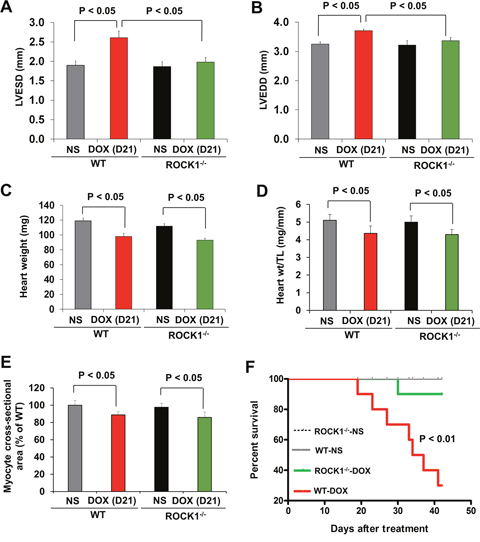 ROCK1 deficient mice are protected from doxorubicin cardiotoxicity.