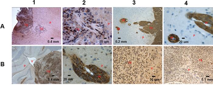 IHC analysis of the RG derived tumors.